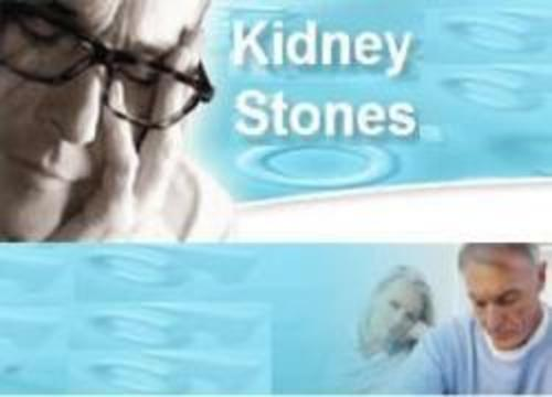 Product picture 51 Tips for Dealing with Kidney Stones